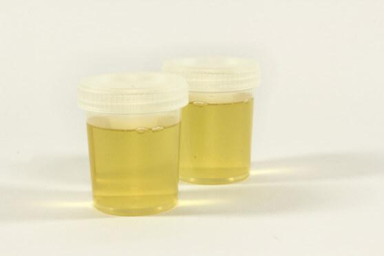 Wie lange ist THC im Urin nachweisbar?